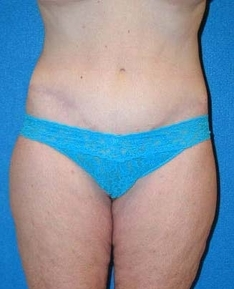 Post Bariatric Surgery