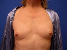 Transgender Breast Surgery
