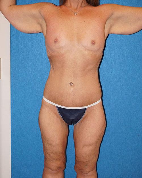 Post Bariatric Surgery