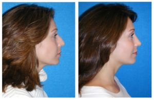 Sacramento Rhinoplasty Before and After