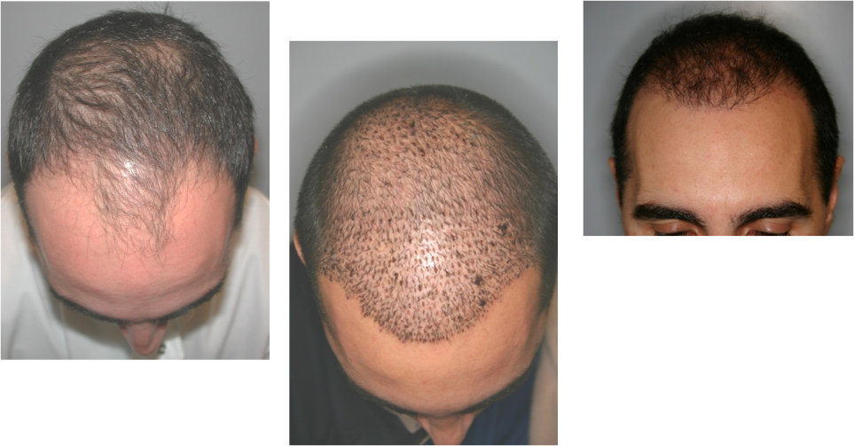 NeoGraft Before and After
