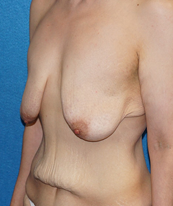 Mastopexy & Breast Augmentation (Breast Lift w Aug)
