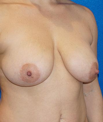 Mastopexy & Breast Augmentation (Breast Lift w Aug)