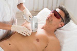 Nonsurgical hair removal in Sacramento